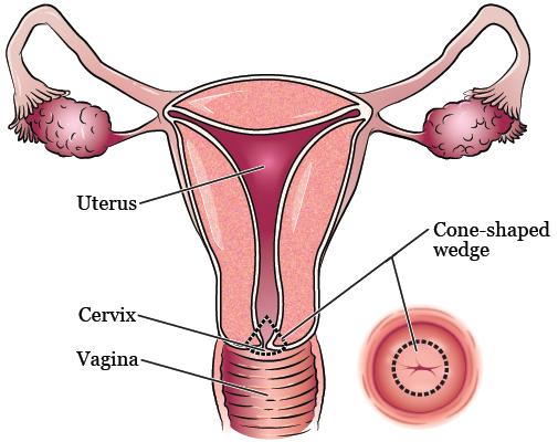 cone_biopsy-fig_1-en.png